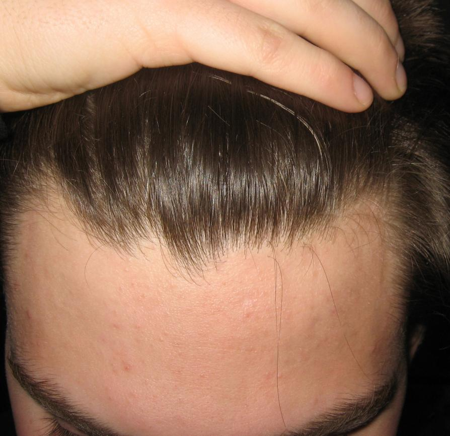 Does A Receding Hairline Invariably Lead To Baldness Neogaf
