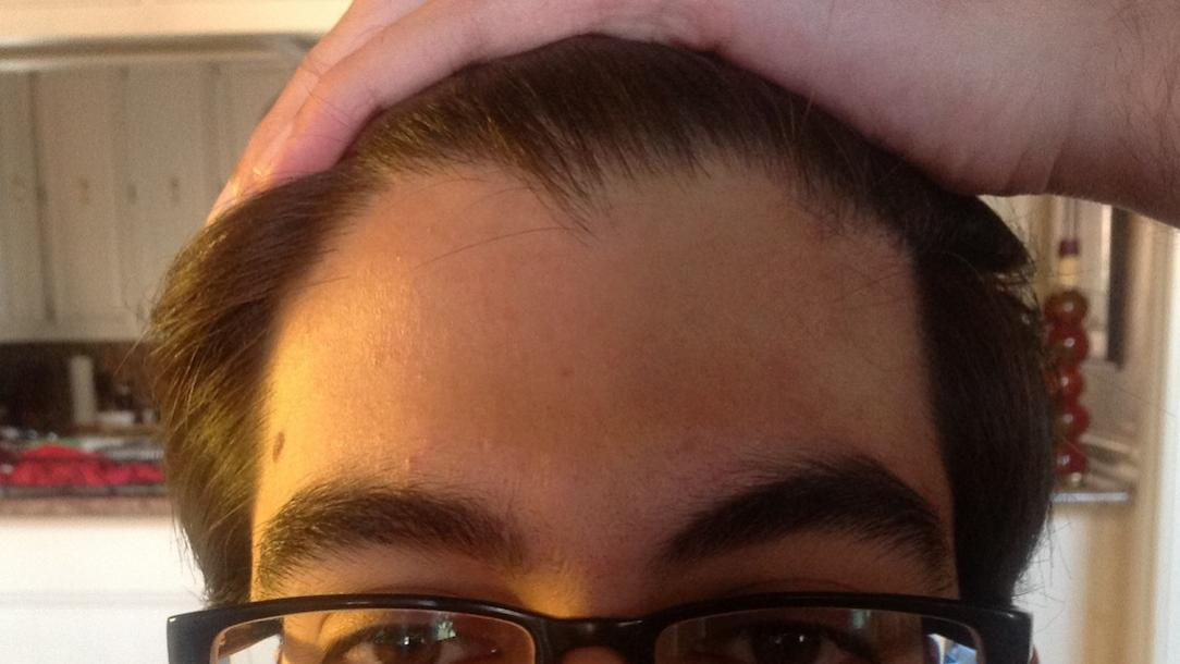 Incredible Thinning Crown But Hairline Is Not Receding Baldtruthtalk Com Hairstyles For Women Draintrainus