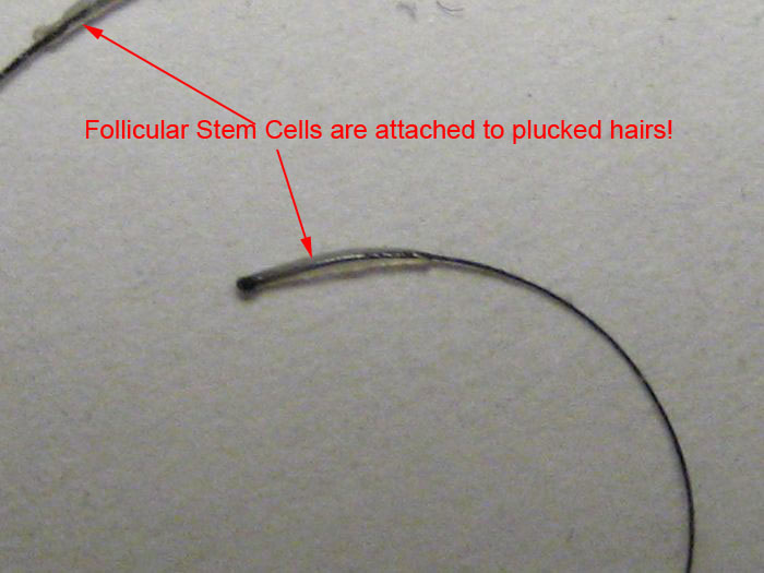 http://www.baldtruthtalk.com/attachment.php?attachmentid=20434&stc=1&d=1365762543 Plucked Hair Follicle Bulb