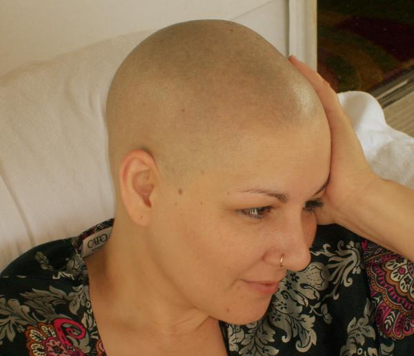 Image uploaded by: AlopecianMuse