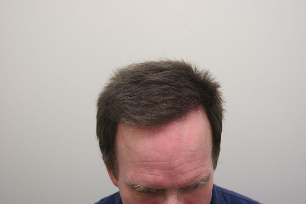 Image uploaded by: Rahal Hair Transplant
