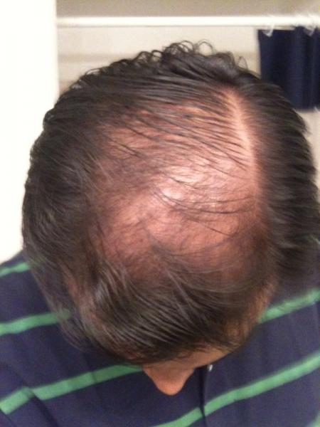 Image uploaded by: almostgoingbald