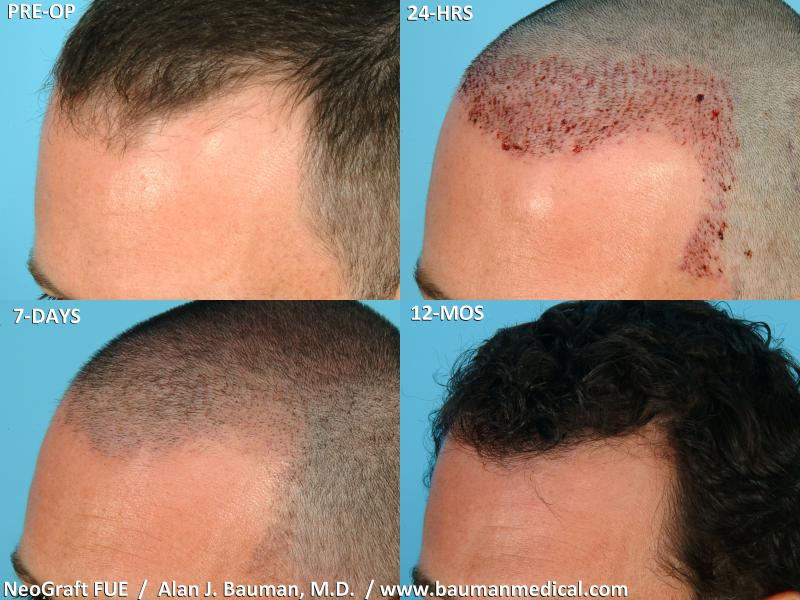 Picture 1 of 2 from NeoGraft FUE Hair Transplant Healing