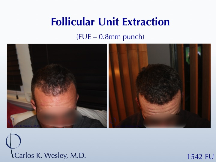 FUE with 0.75mm punch