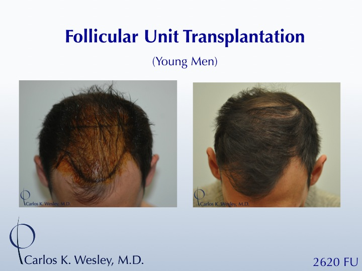 A 26-yr-old male Before/After 2060 grafts from Dr. Carlos K. Wesley.