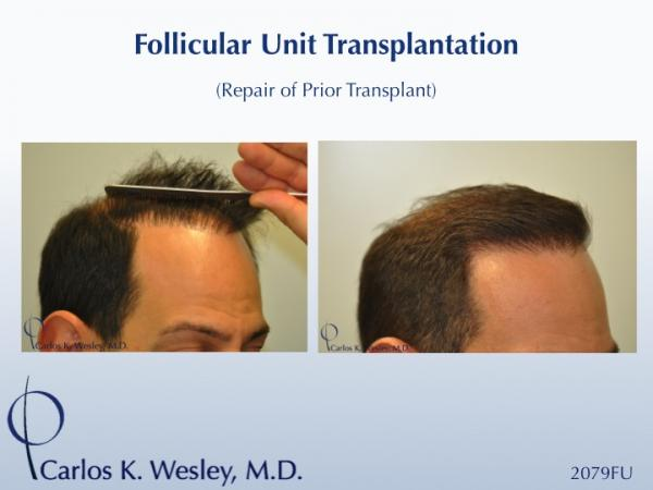 "Softening a ""pluggy"" appearing hairline can be achieved in a single session. This 42-year-old male had previously undergone two hair transplants that left him with an unnatural appearing hairline. Dr. Wesley effectively softened his hairline and, after only seven months, the patient was already beginning to benefit from this repair session consisting of 2079 micro grafts.