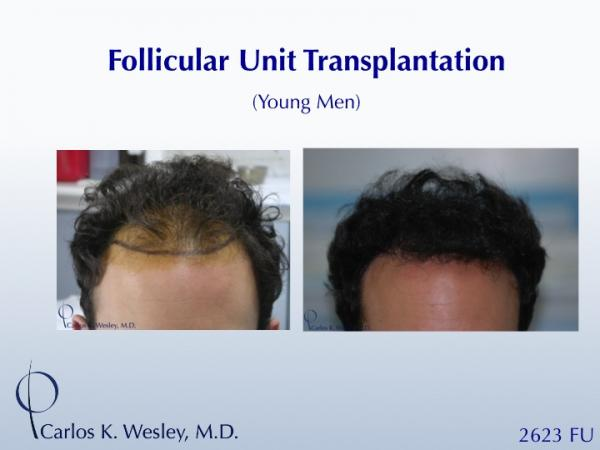 An interactive before/after of this patient can be viewed at: