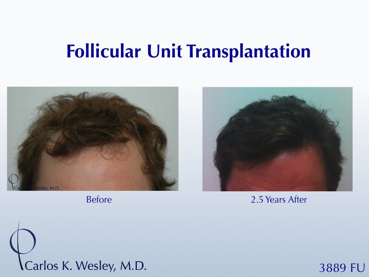 This patient had a session with Dr. Carlos K. Wesley (NYC) to increase the hair density throughout the frontal half of his scalp and improve the framing of his face.