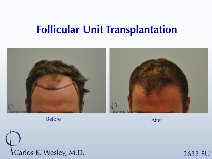 This patient presented to Dr. Carlos K. Wesley (NYC) for a hairline advancement.