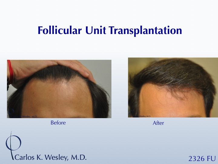 Image uploaded by: Carlos Wesley, MD