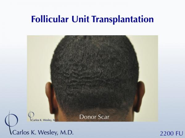 African-American male in his 30s underwent surgical hair restoration with Dr. Wesley (NYC).  Before and 11 months after a 2200 FU session.