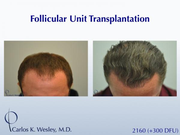 This 40-year old underwent surgical hair restoration with Dr. Carlos K. Wesley (NYC).  He received 2460 grafts (300 of which were DFUs) and presented 10 months postoperatively.