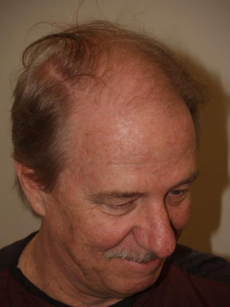 Side view before 2600 hair transplant grafts.
