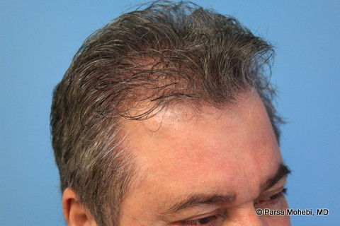 Right Side View After Hair Transplant
