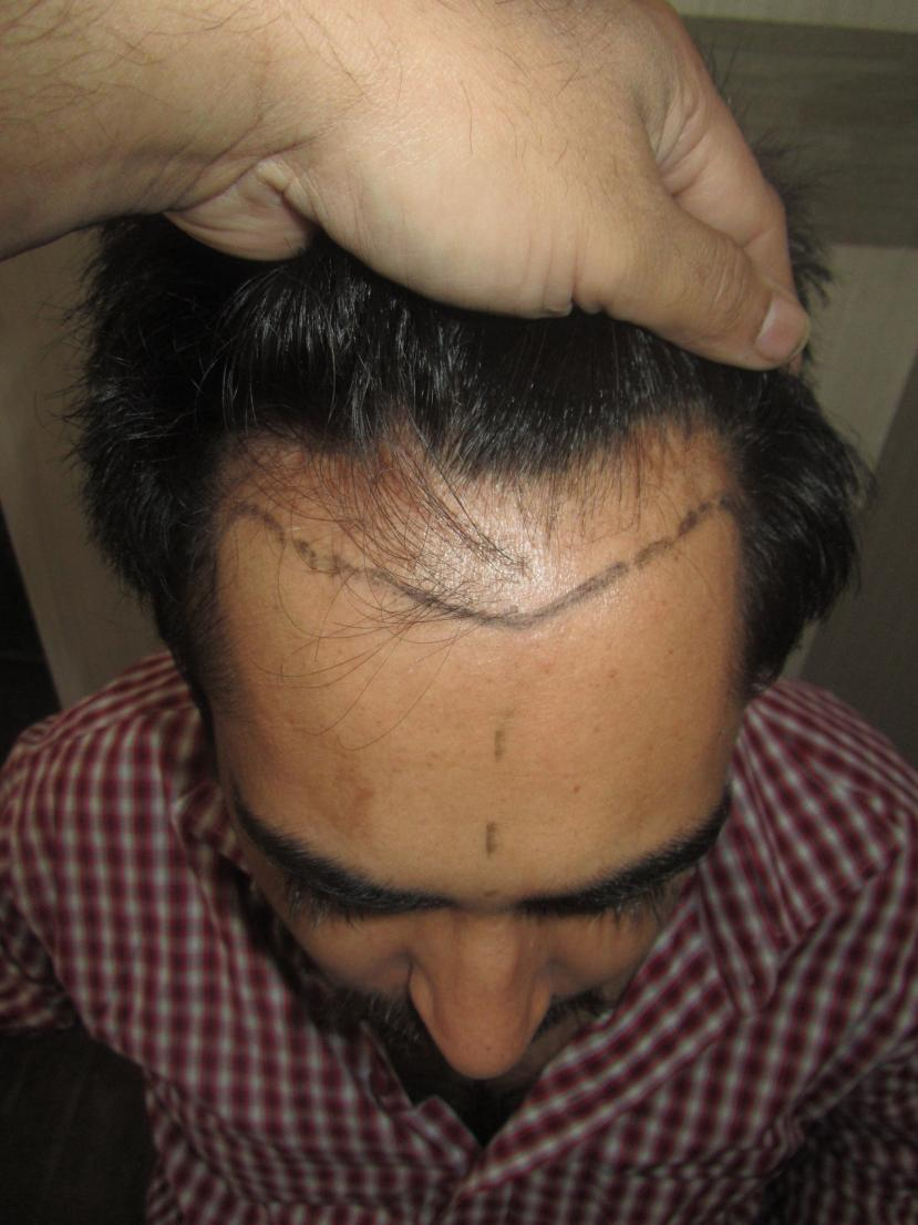 Dr Bhatti 2883 Fue Grafts For An Indian Celebrity Patient