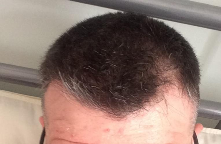 Click Image For Larger Version Name Hairline3 Jpg Size 36 6 Kb Id