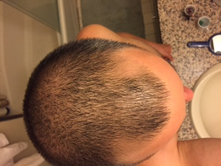 My 3 Month Results Baldtruthtalk Com