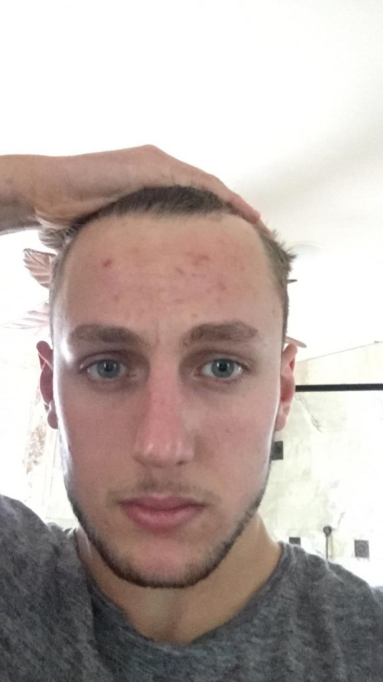20 Years Old Is My Hairline Receding Or Mature Baldtruthtalk Com