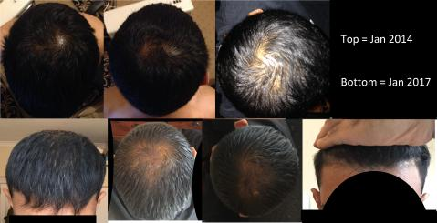 Hairloss Battle Story 3 Years Pics Q S Need Answering Fin Time 24 Years Old Baldtruthtalk Com