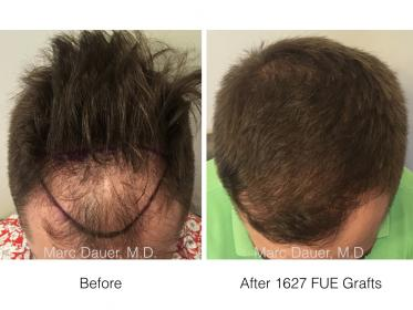 1627 FUE Grafts performed by Dr. Marc Dauer