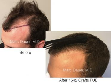 1542 FUE Grafts by Dr. Marc Dauer