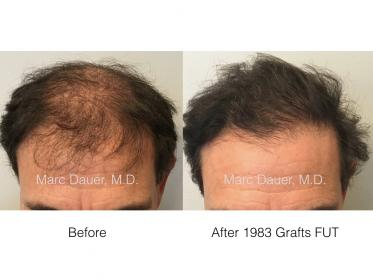 patient hair transplant result of Marc Dauer, MD