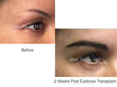 eyebrow transplant photos of a patient of Dr. Marc Dauer