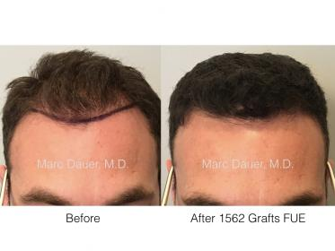 1562 grafts FUE performed by Dr. Marc Dauer