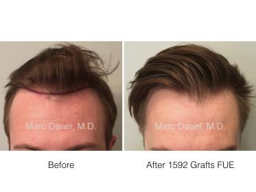 Dr. Marc Dauer hair transplant photos