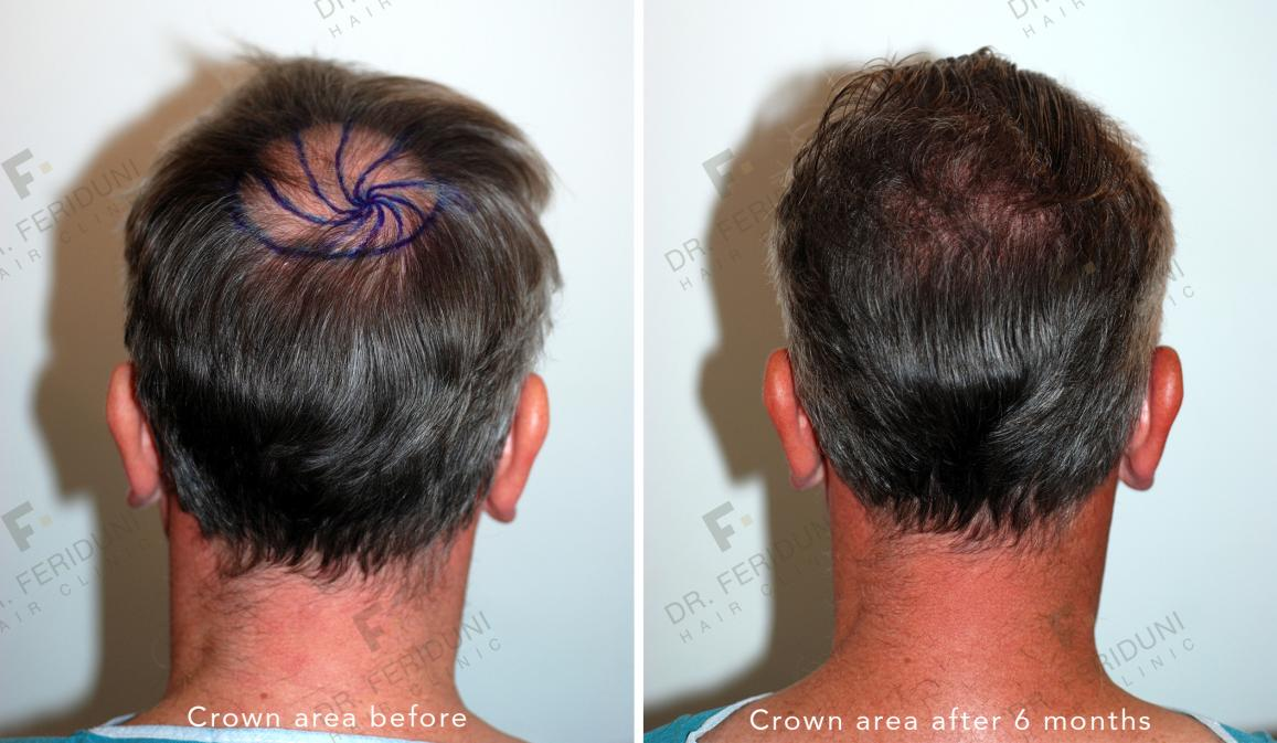 Image uploaded by: Dr Feriduni Hair Clinic