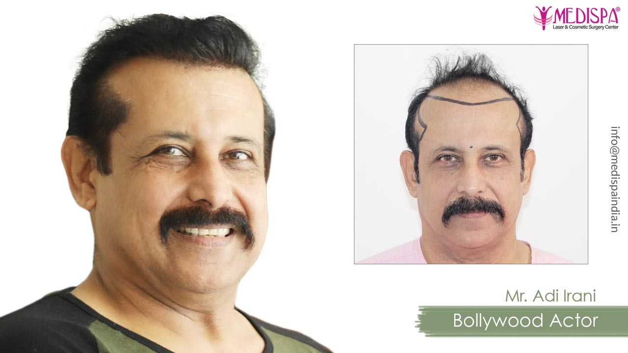Bollywood Actor Adi Irani Hair Transplant Result done by Dr. Suneet Soni at Medispa