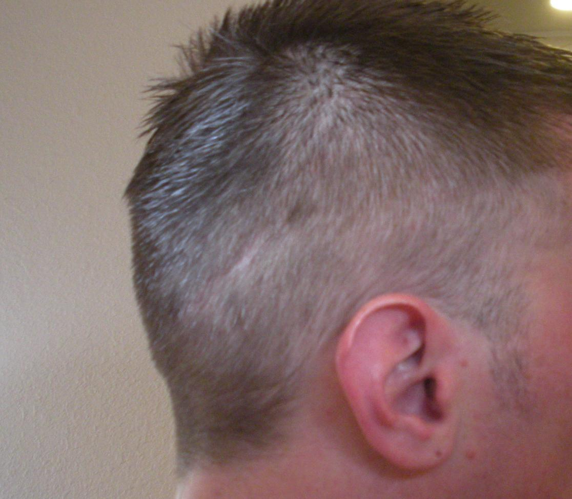 Photos Of Military Haircut With Strip Scar Baldtruthtalk