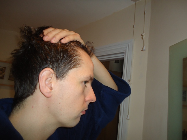 Receding Hairline What Do You Think Baldtruthtalk Com