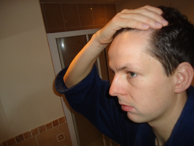 How to rock a receding hairline