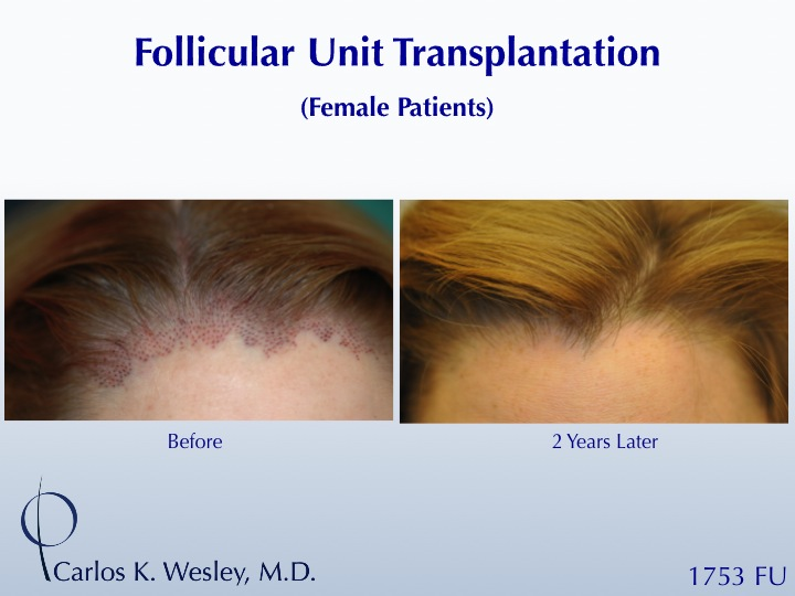 This 32-year-old woman benefitted from FUT with Dr. Carlos K. Wesley (NYC).