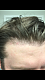 Forum for Dr's you do not recommend and why!    I received my first hair transplant (and second a week later) by Dr Mike Meshkin in Newport Beach, California.   I paid for 1500 grafts...